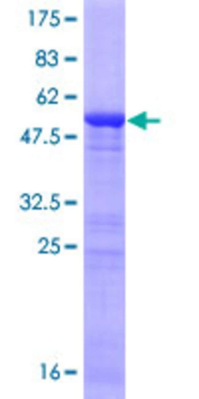 Abnova™ Human ING5 Full-length ORF (NP_115705.2, 1 a.a. - 240 a.a.) Recombinant Protein with GST-tag at N-terminal 10μg Abnova™ Human ING5 Full-length ORF (NP_115705.2, 1 a.a. - 240 a.a.) Recombinant Protein with GST-tag at N-terminal