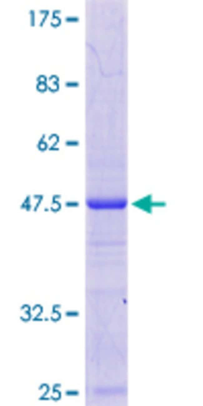 Abnova Human LSMD1 Full-length ORF (NP_115732.2, 1 a.a. - 173 a.a.) Recombinant
