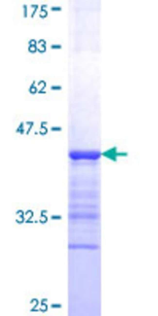 Abnova™Human MAML2 Partial ORF (NP_115803, 796 a.a. - 894 a.a.) Recombinant Protein with GST-tag at N-terminal 25μg Abnova™Human MAML2 Partial ORF (NP_115803, 796 a.a. - 894 a.a.) Recombinant Protein with GST-tag at N-terminal