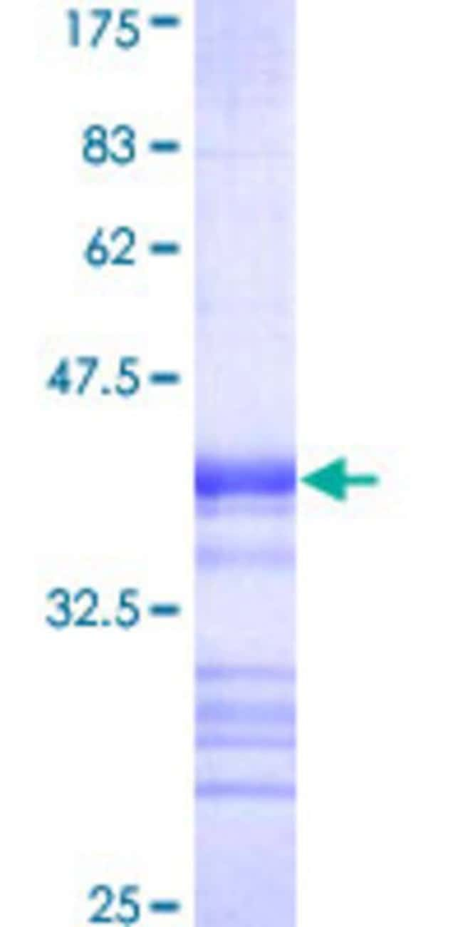Abnova™Human LZTS2 Partial ORF (AAH06212, 55 a.a. - 154 a.a.) Recombinant Protein with GST-tag at N-terminal 10μg Abnova™Human LZTS2 Partial ORF (AAH06212, 55 a.a. - 154 a.a.) Recombinant Protein with GST-tag at N-terminal