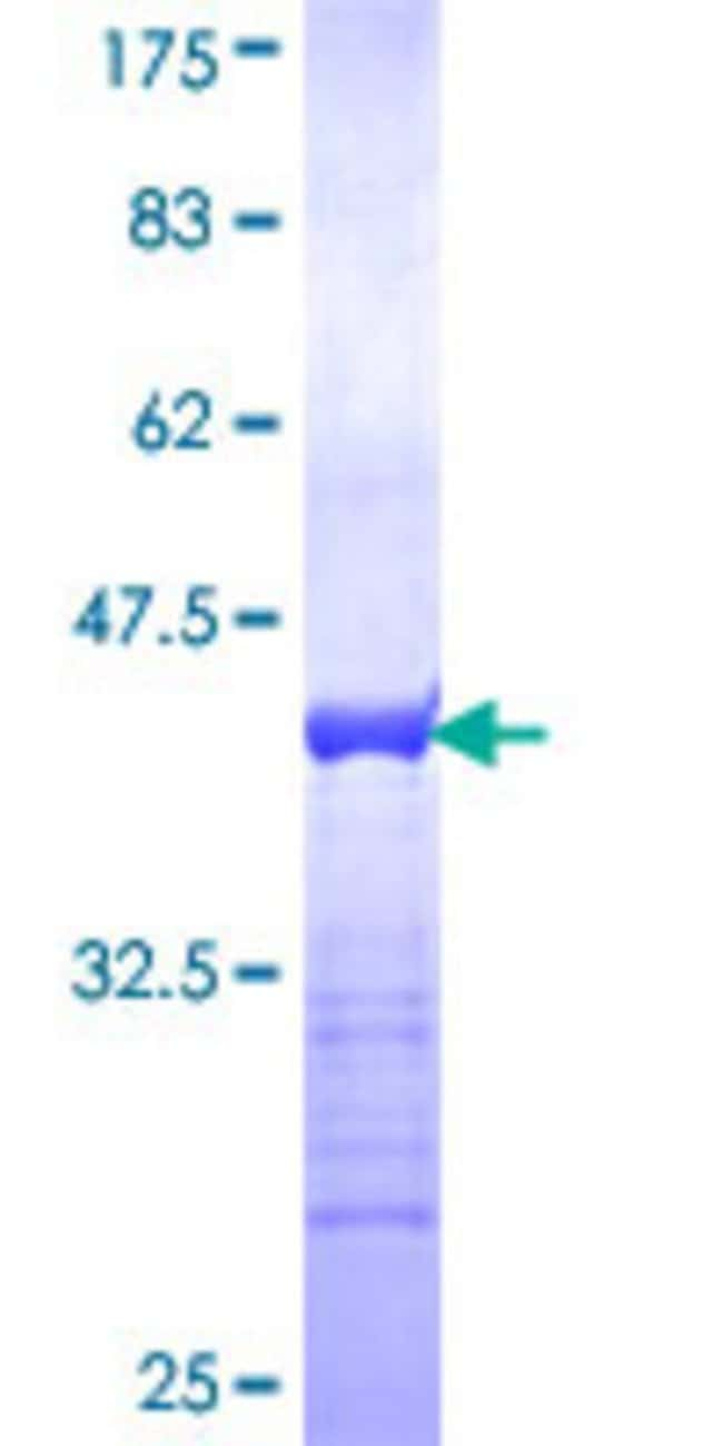 Abnova™Human BRSK1 Partial ORF (NP_115806, 289 a.a. - 380 a.a.) Recombinant Protein with GST-tag at N-terminal 25μg Abnova™Human BRSK1 Partial ORF (NP_115806, 289 a.a. - 380 a.a.) Recombinant Protein with GST-tag at N-terminal