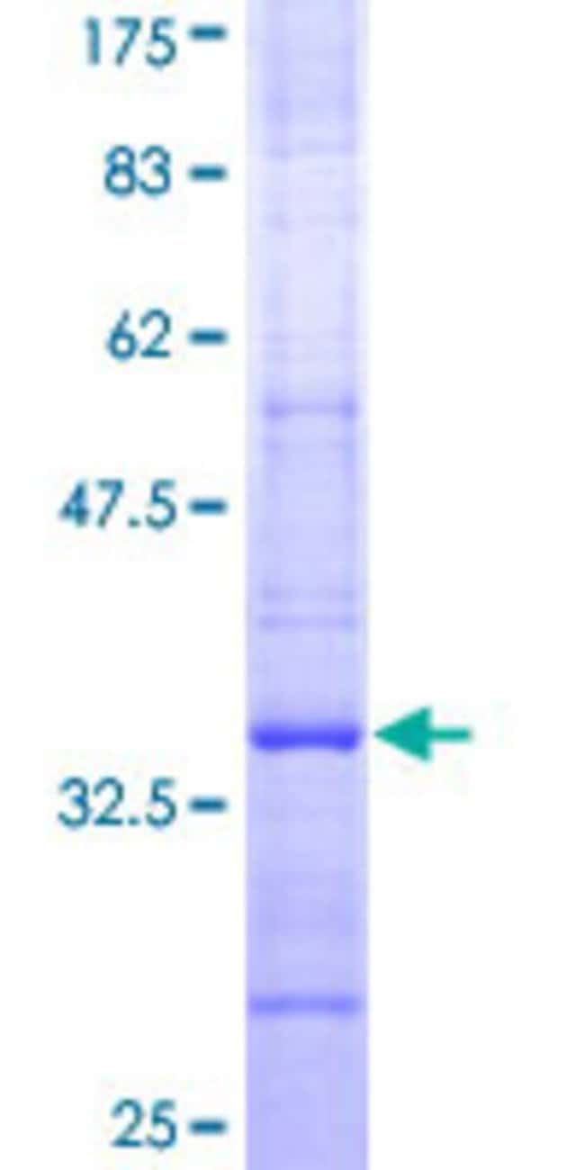 Abnova™Human SYVN1 Partial ORF (NP_079434, 238 a.a. - 318 a.a.) Recombinant Protein with GST-tag at N-terminal 10μg Abnova™Human SYVN1 Partial ORF (NP_079434, 238 a.a. - 318 a.a.) Recombinant Protein with GST-tag at N-terminal