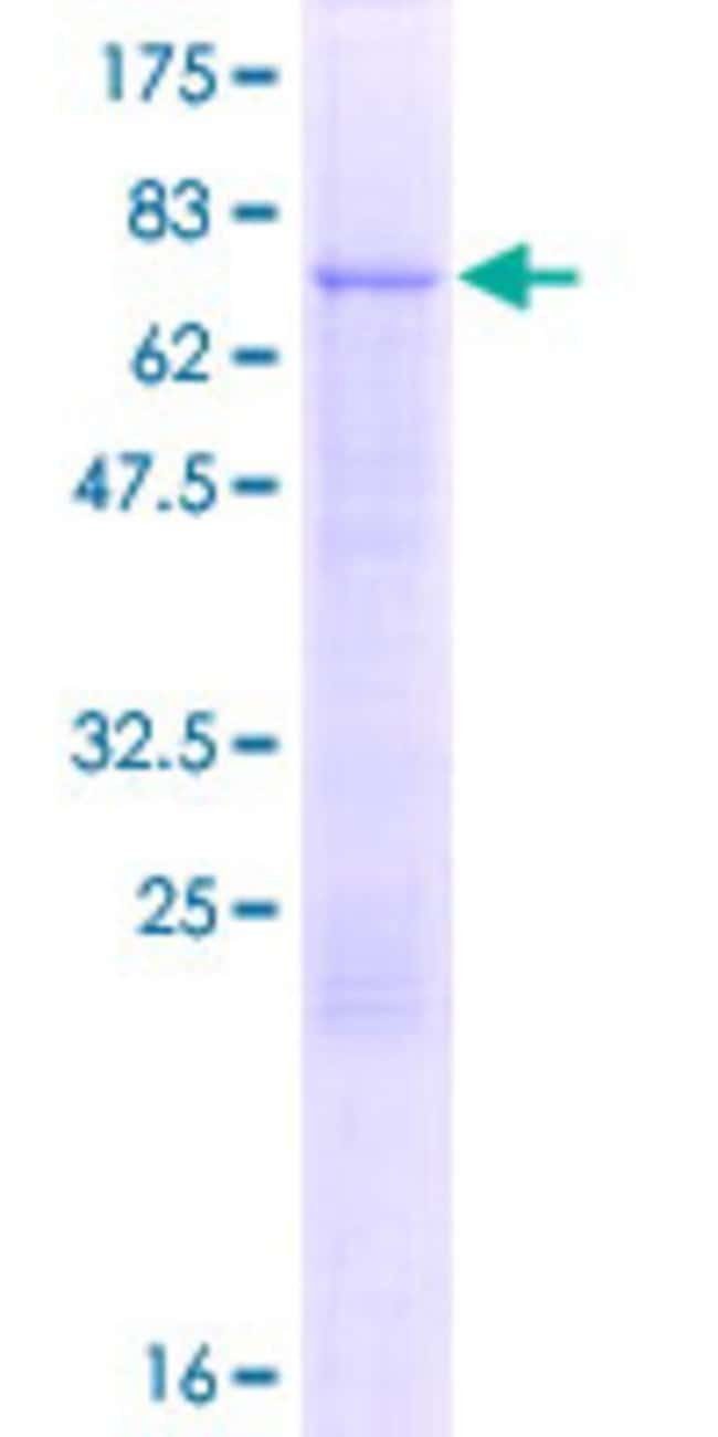 Abnova™Human LCOR Full-length ORF (AAH53359.1, 1 a.a. - 406 a.a.) Recombinant Protein with GST-tag at N-terminal 10μg Abnova™Human LCOR Full-length ORF (AAH53359.1, 1 a.a. - 406 a.a.) Recombinant Protein with GST-tag at N-terminal