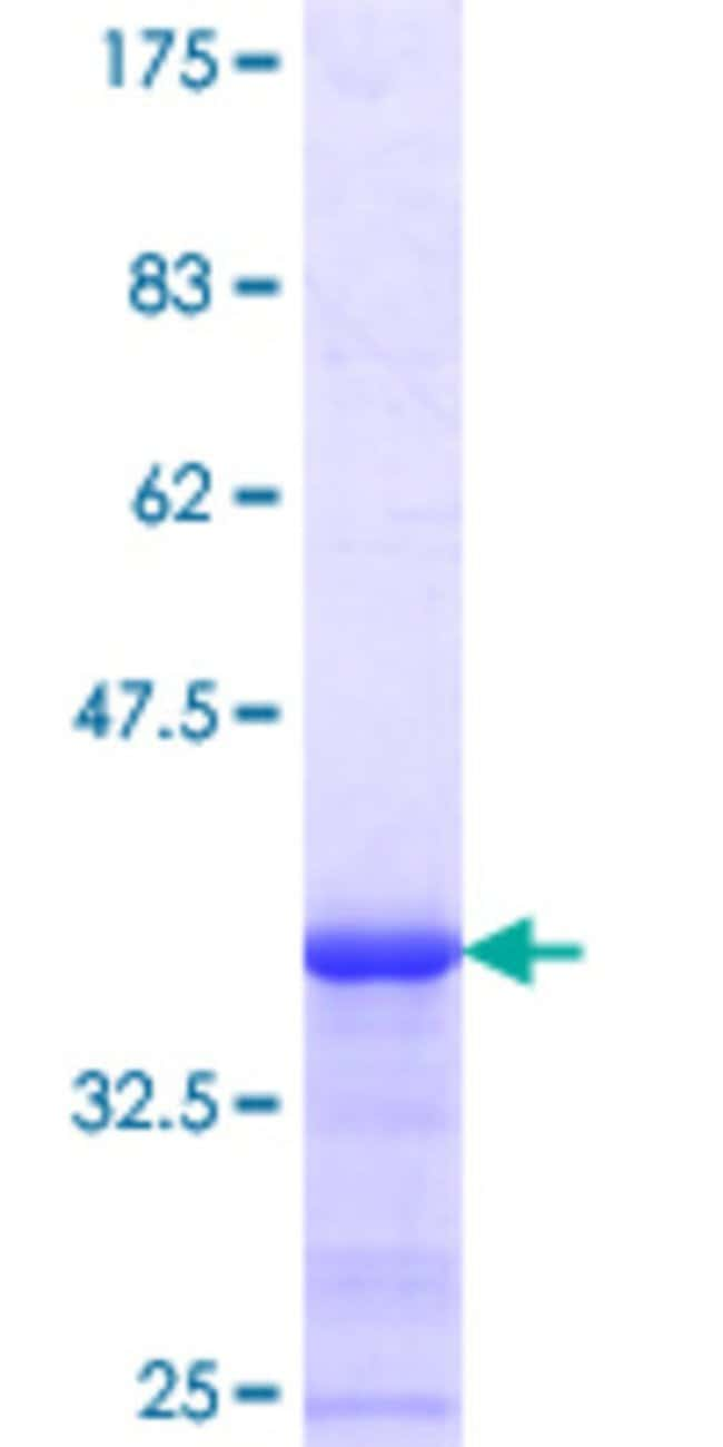 Abnova™Human MLR2 Partial ORF (NP_115816.1, 1 a.a. - 100 a.a.) Recombinant Protein with GST-tag at N-terminal 25μg Abnova™Human MLR2 Partial ORF (NP_115816.1, 1 a.a. - 100 a.a.) Recombinant Protein with GST-tag at N-terminal