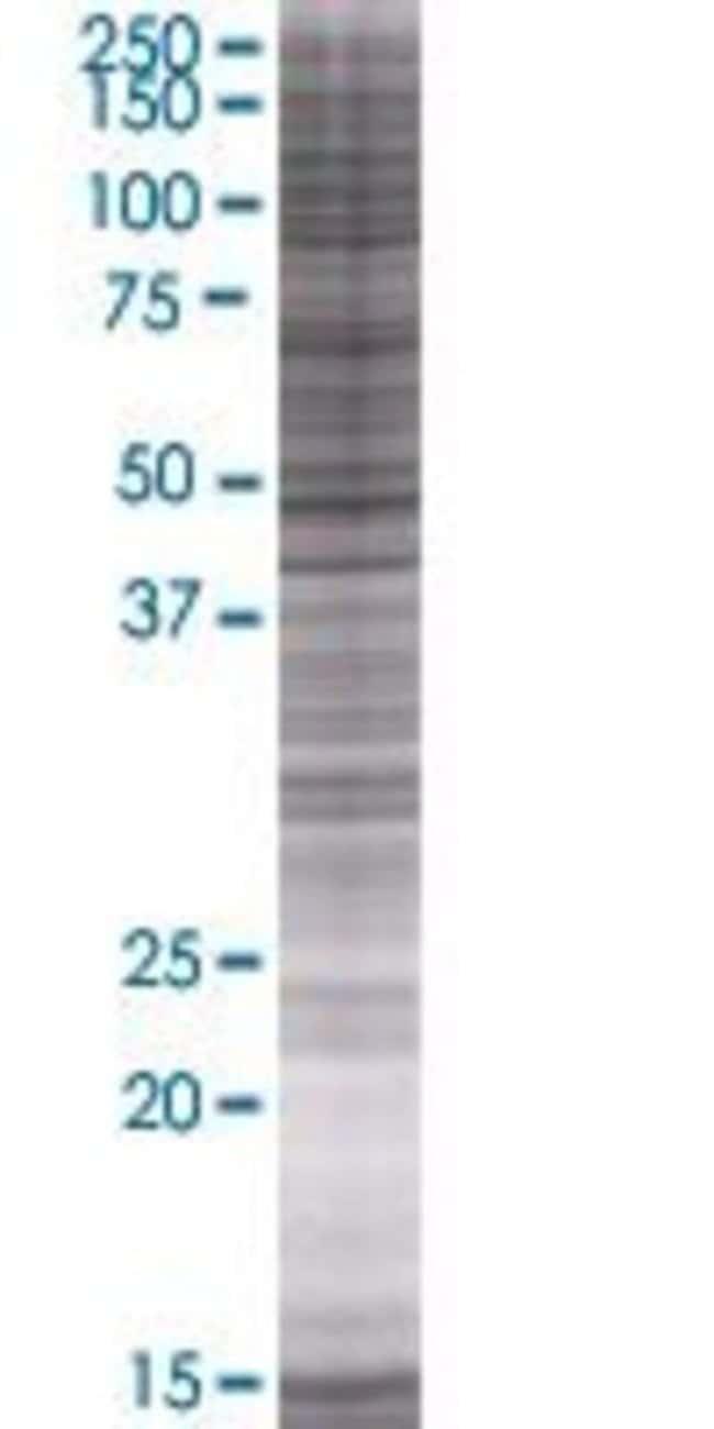 Abnova LCOR 293T Cell Transient Overexpression Lysate (Denatured) 100µL:Life