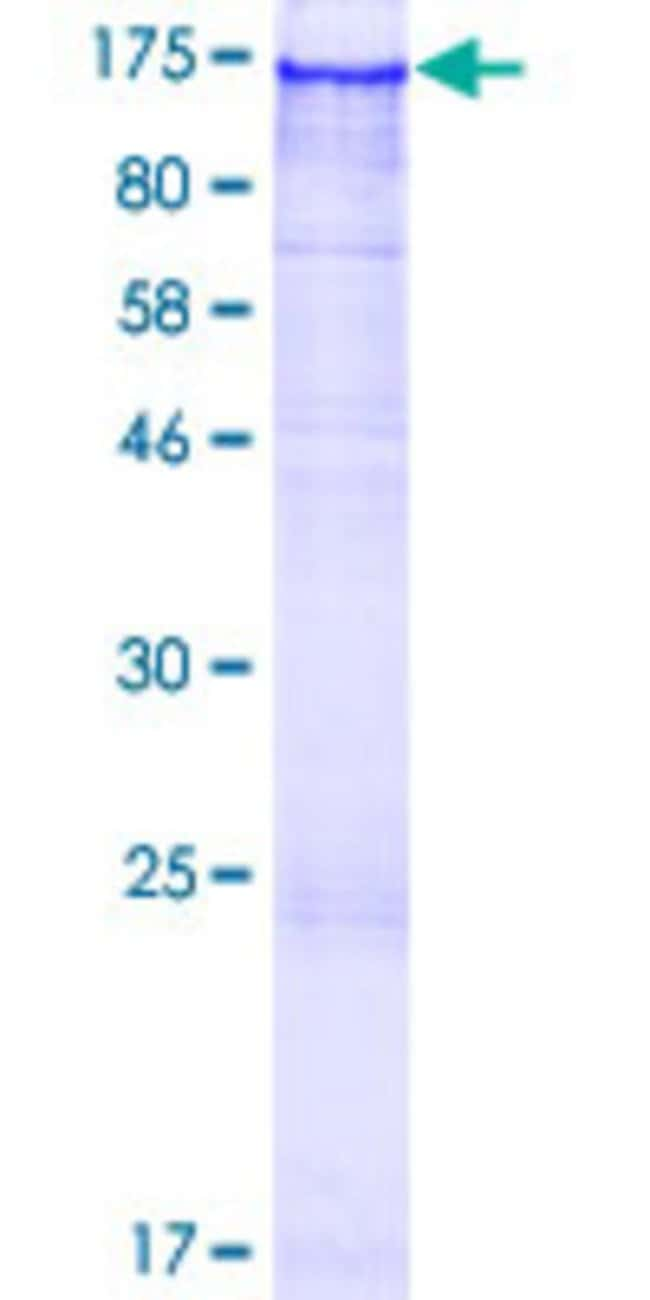 Abnova™Human FAM120B Full-length ORF (NP_115824.1, 1 a.a. - 910 a.a.) Recombinant Protein with GST-tag at N-terminal 10μg Abnova™Human FAM120B Full-length ORF (NP_115824.1, 1 a.a. - 910 a.a.) Recombinant Protein with GST-tag at N-terminal