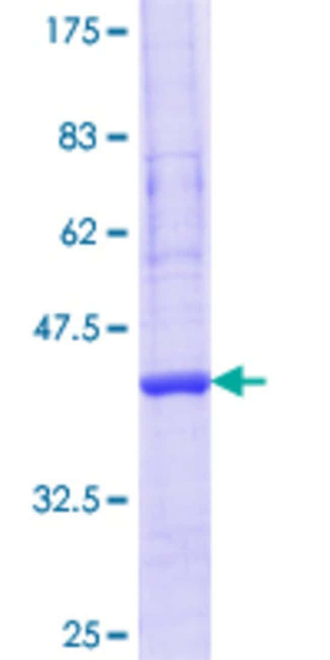 Abnova™Human ARPM1 Partial ORF (NP_115876.2, 24 a.a. - 124 a.a.) Recombinant Protein with GST-tag at N-terminal 10μg Abnova™Human ARPM1 Partial ORF (NP_115876.2, 24 a.a. - 124 a.a.) Recombinant Protein with GST-tag at N-terminal