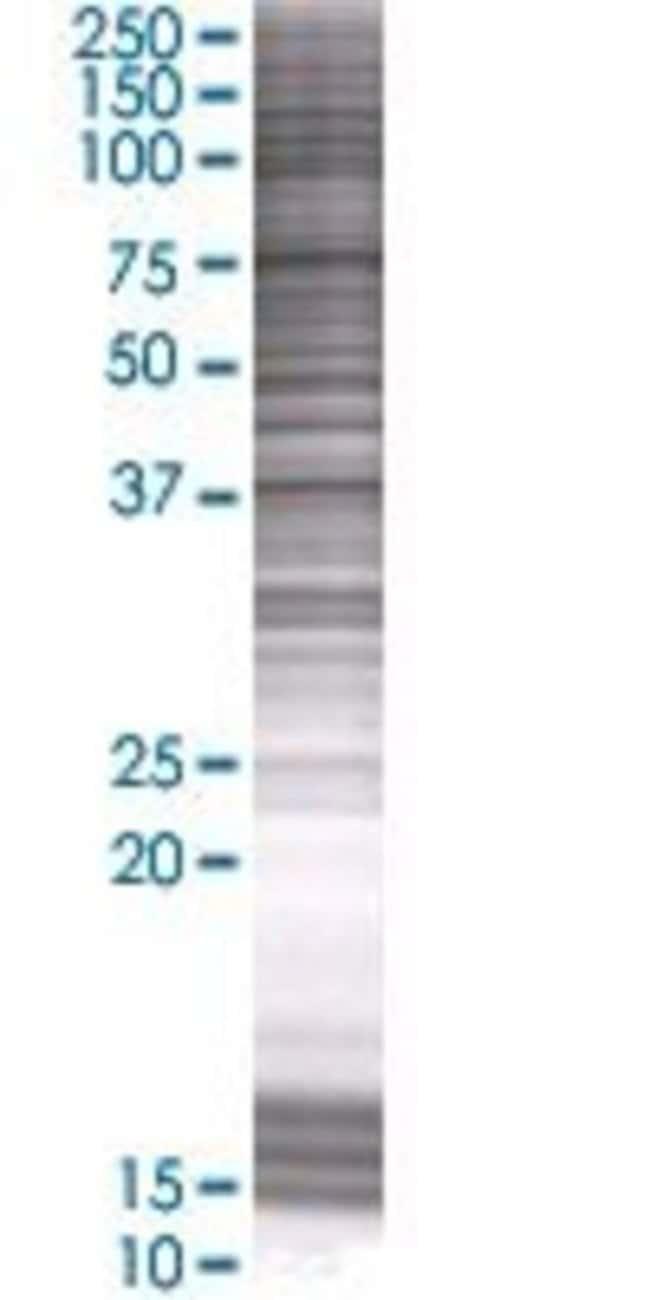 AbnovaARPM1 293T Cell Transient Overexpression Lysate (Denatured) 100μL:Protein
