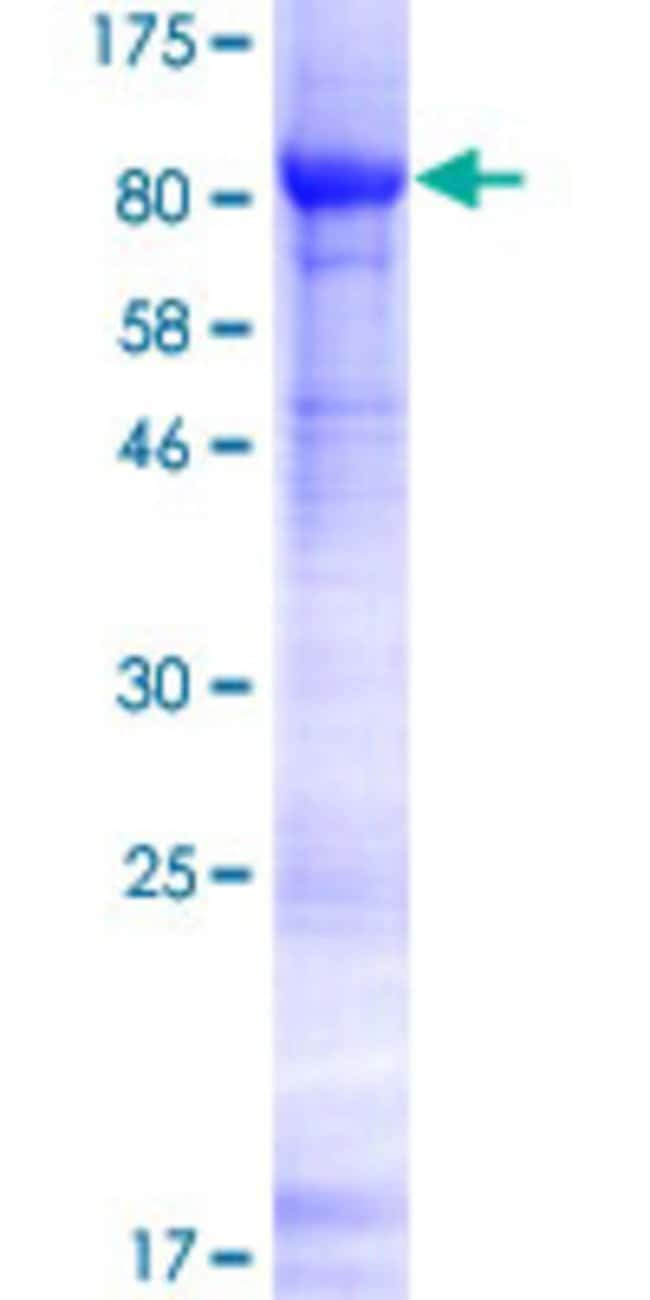 AbnovaHuman ACRBP Full-length ORF (NP_115878.2, 1 a.a. - 543 a.a.) Recombinant