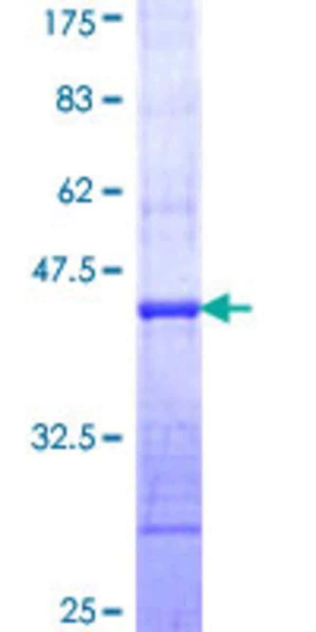Abnova™Human MAP1LC3A Partial ORF (NP_115903, 1 a.a. - 102 a.a.) Recombinant Protein with GST-tag at N-terminal 10μg Abnova™Human MAP1LC3A Partial ORF (NP_115903, 1 a.a. - 102 a.a.) Recombinant Protein with GST-tag at N-terminal
