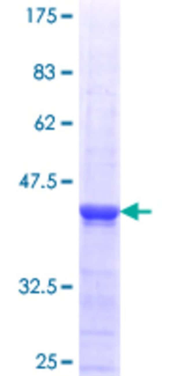 Abnova™ Human ST6GAL2 Partial ORF (NP_115917.1, 33 a.a. - 141 a.a.) Recombinant Protein with GST-tag at N-terminal 25μg Abnova™ Human ST6GAL2 Partial ORF (NP_115917.1, 33 a.a. - 141 a.a.) Recombinant Protein with GST-tag at N-terminal