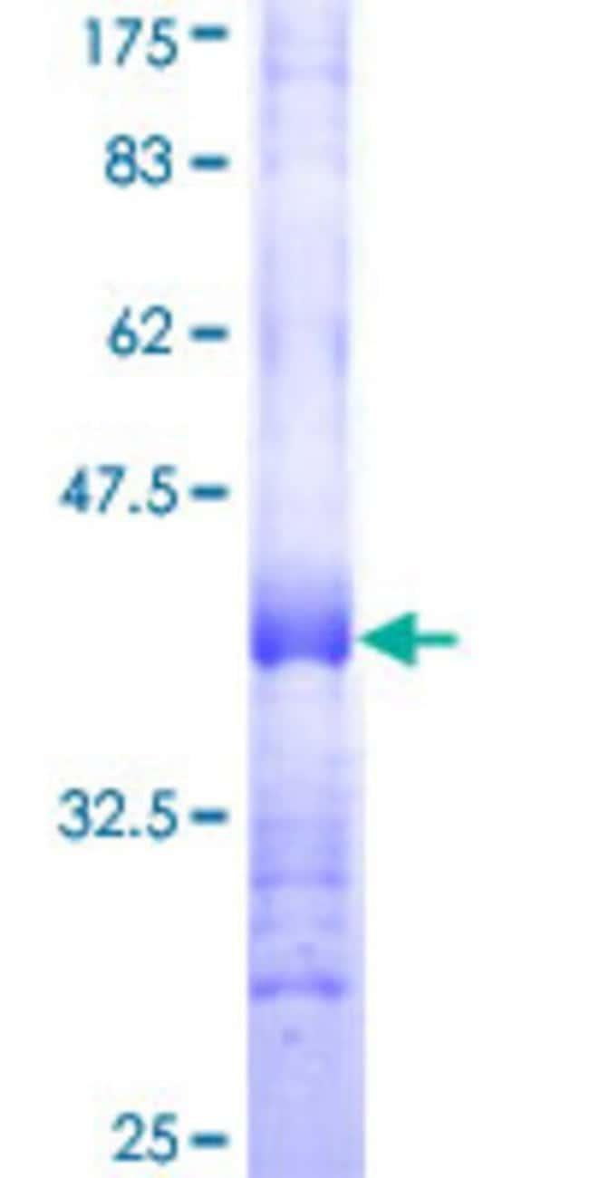 Abnova™Human NTNG2 Partial ORF (NP_115925, 21 a.a. - 119 a.a.) Recombinant Protein with GST-tag at N-terminal 25μg Abnova™Human NTNG2 Partial ORF (NP_115925, 21 a.a. - 119 a.a.) Recombinant Protein with GST-tag at N-terminal