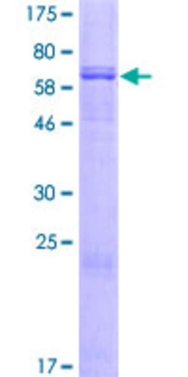 Abnova™Human DGAT2 Full-length ORF (NP_115953.2, 1 a.a. - 388 a.a.) Recombinant Protein with GST-tag at N-terminal 10μg Abnova™Human DGAT2 Full-length ORF (NP_115953.2, 1 a.a. - 388 a.a.) Recombinant Protein with GST-tag at N-terminal