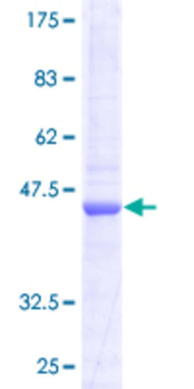 Abnova™Human COX4I2 Full-length ORF (AAH57779, 1 a.a. - 171 a.a.) Recombinant Protein with GST-tag at N-terminal 25μg Abnova™Human COX4I2 Full-length ORF (AAH57779, 1 a.a. - 171 a.a.) Recombinant Protein with GST-tag at N-terminal