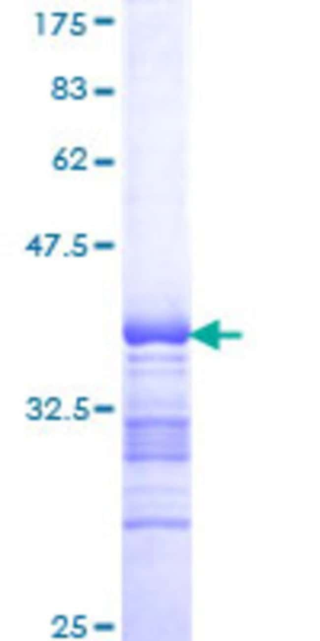 Abnova™ Human CBX2 Partial ORF (NP_005180, 374 a.a. - 463 a.a.) Recombinant Protein with GST-tag at N-terminal 25μg Abnova™ Human CBX2 Partial ORF (NP_005180, 374 a.a. - 463 a.a.) Recombinant Protein with GST-tag at N-terminal