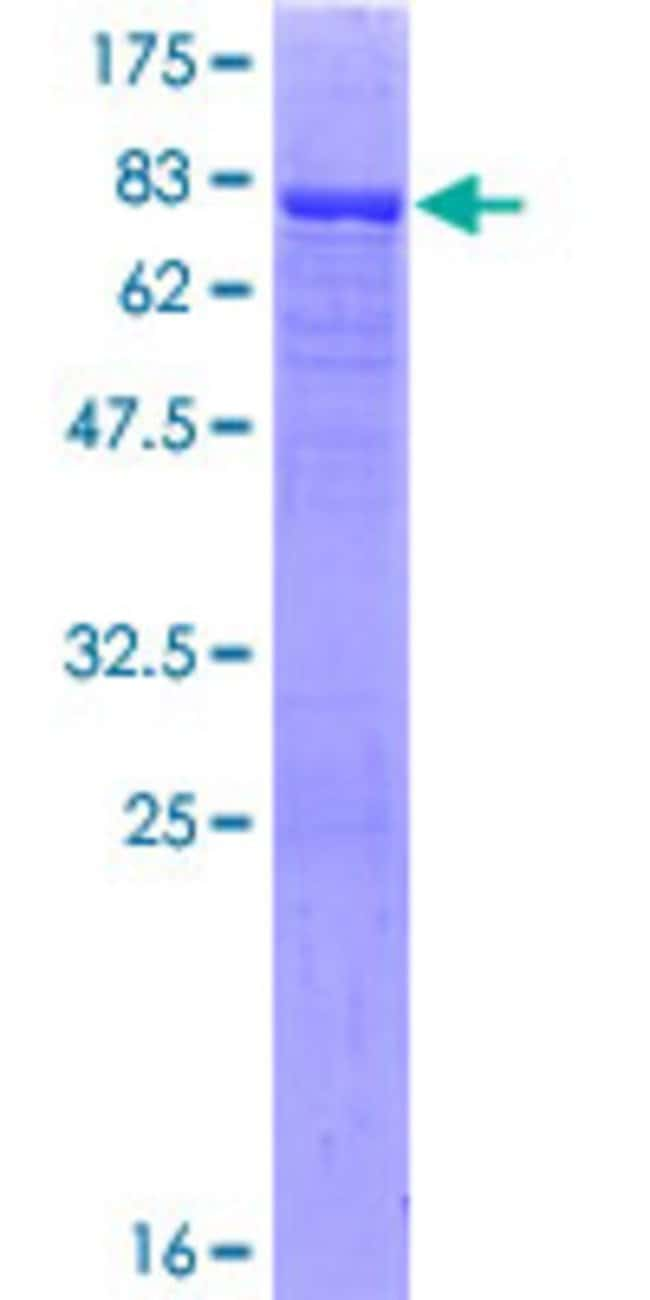 Abnova™Human CNDP1 Full-length ORF (NP_116038.4, 1 a.a. - 507 a.a.) Recombinant Protein with GST-tag at N-terminal 25μg Abnova™Human CNDP1 Full-length ORF (NP_116038.4, 1 a.a. - 507 a.a.) Recombinant Protein with GST-tag at N-terminal