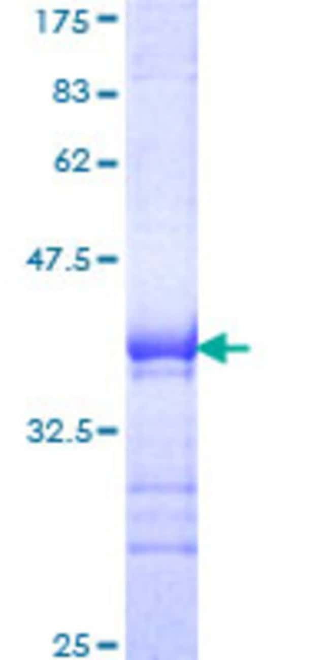 Abnova™Human PHF5A Full-length ORF (NP_116147, 1 a.a. - 110 a.a.) Recombinant Protein with GST-tag at N-terminal 25μg Abnova™Human PHF5A Full-length ORF (NP_116147, 1 a.a. - 110 a.a.) Recombinant Protein with GST-tag at N-terminal