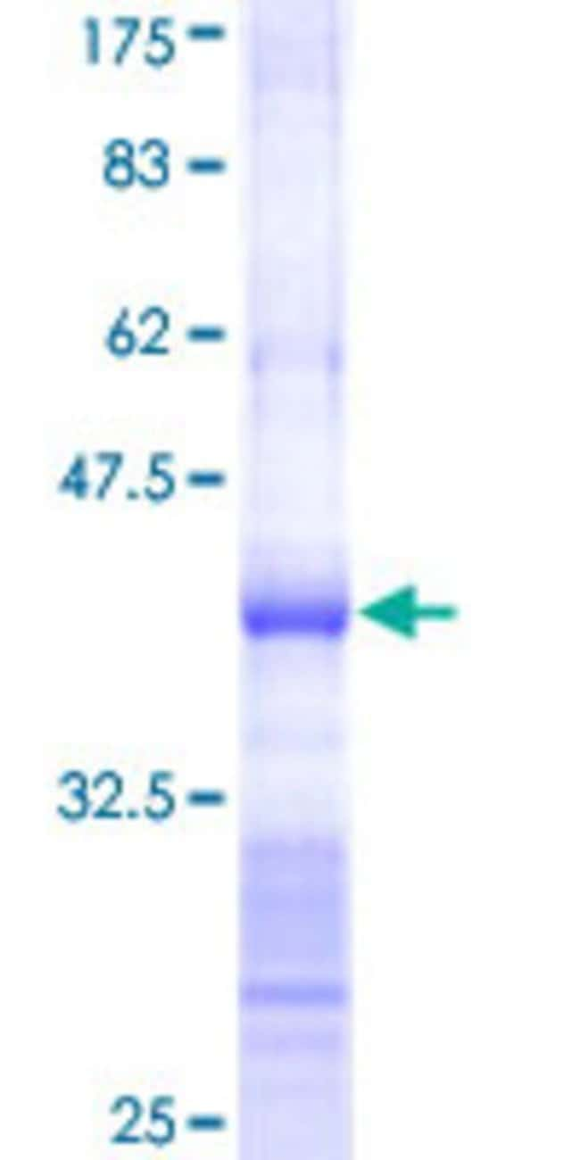 Abnova™Human TRIM52 Partial ORF (NP_116154, 201 a.a. - 297 a.a.) Recombinant Protein with GST-tag at N-terminal 10μg Abnova™Human TRIM52 Partial ORF (NP_116154, 201 a.a. - 297 a.a.) Recombinant Protein with GST-tag at N-terminal