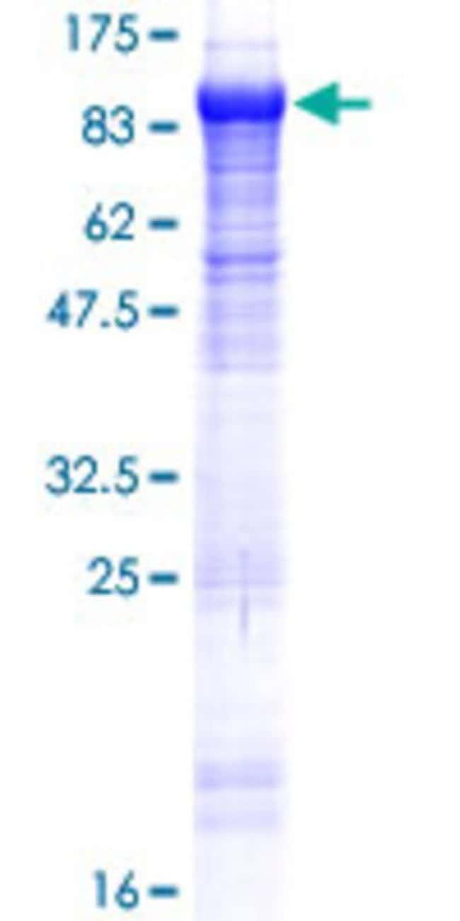 Abnova Human KLHL22 Full-length ORF (NP_116164.2, 1 a.a. - 634 a.a.) Recombinant