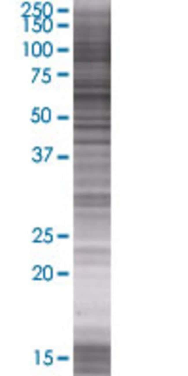 Abnova PTPN5 293T Cell Transient Overexpression Lysate (Denatured) 100µL:Life