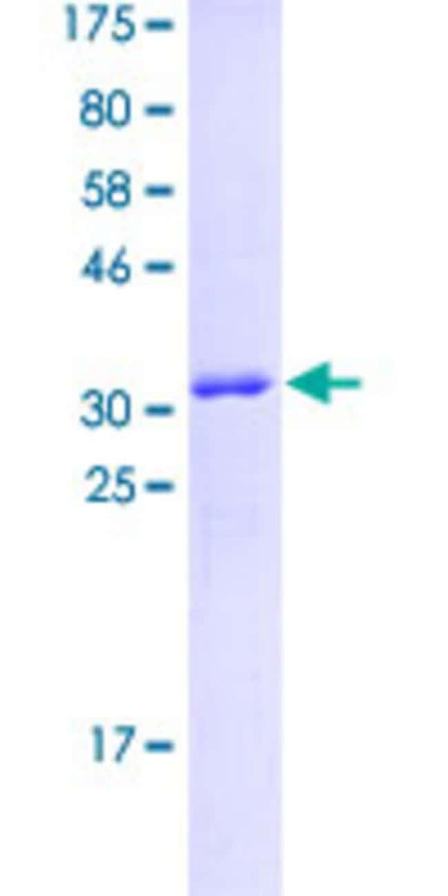 Abnova™Human GPR128 Partial ORF (NP_116176.1, 31 a.a. - 130 a.a.) Recombinant Protein with GST-tag at N-terminal 10μg Abnova™Human GPR128 Partial ORF (NP_116176.1, 31 a.a. - 130 a.a.) Recombinant Protein with GST-tag at N-terminal