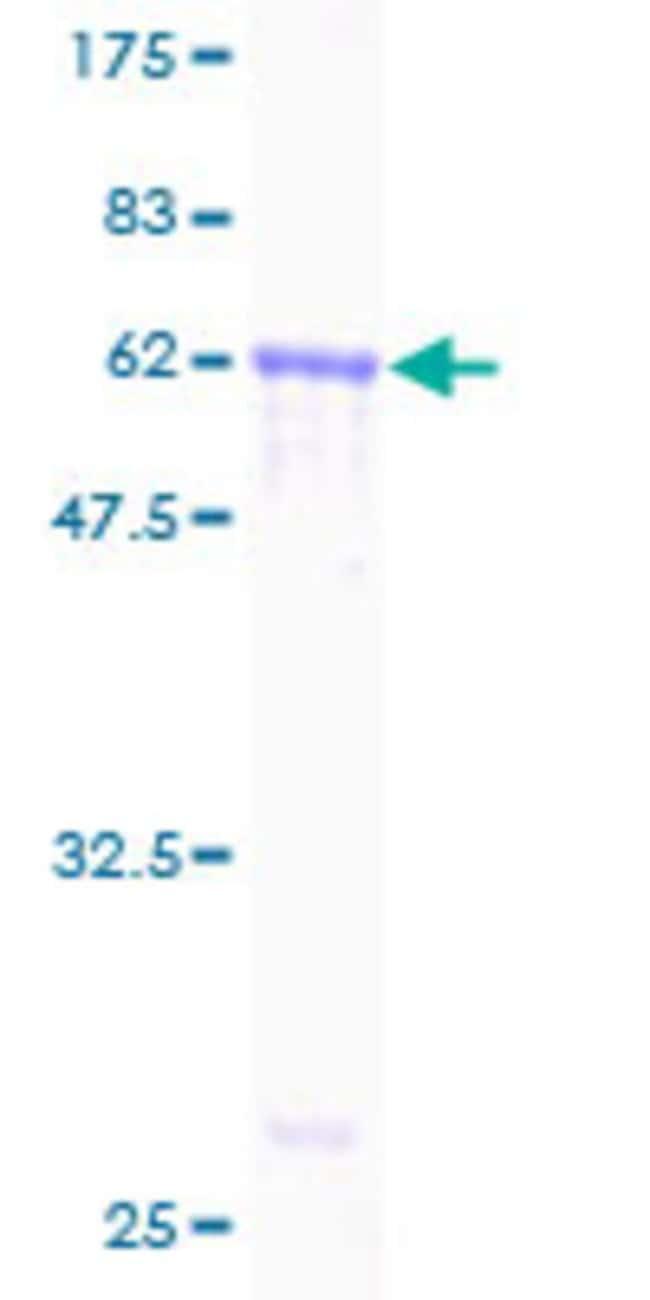 AbnovaHuman AMID Partial ORF (AAH06121, 1 a.a. - 339 a.a.) Recombinant
