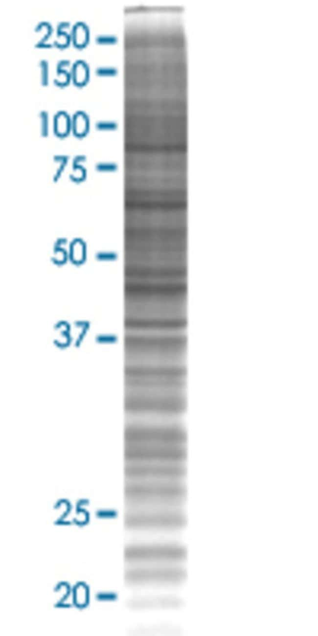 AbnovaAMID 293T Cell Transient Overexpression Lysate (Denatured) 100μL:Protein