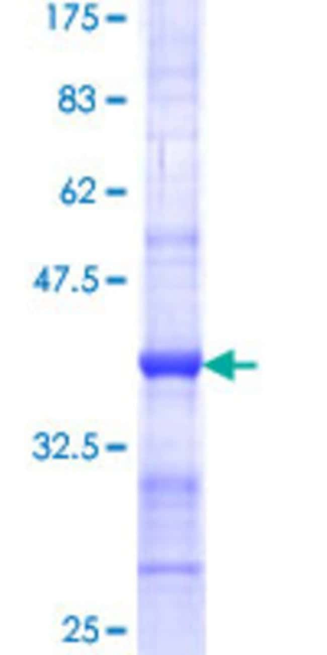 Abnova™Human SPPL2A Partial ORF (NP_116191, 31 a.a. - 129 a.a.) Recombinant Protein with GST-tag at N-terminal 25μg Abnova™Human SPPL2A Partial ORF (NP_116191, 31 a.a. - 129 a.a.) Recombinant Protein with GST-tag at N-terminal