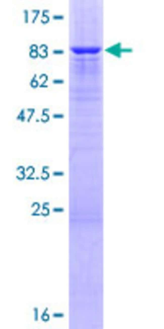 Abnova™Human LRP11 Full-length ORF (NP_116221.2, 1 a.a. - 500 a.a.) Recombinant Protein with GST-tag at N-terminal 25μg Abnova™Human LRP11 Full-length ORF (NP_116221.2, 1 a.a. - 500 a.a.) Recombinant Protein with GST-tag at N-terminal