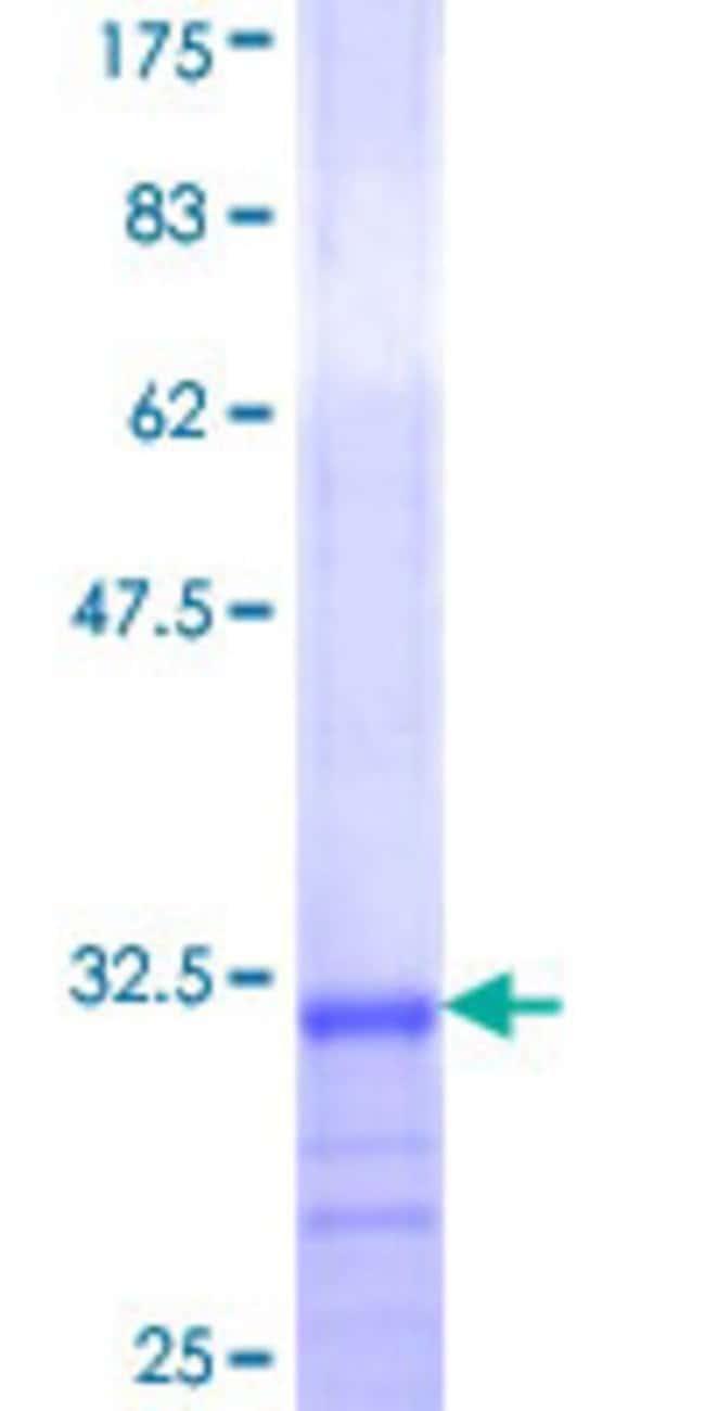 AbnovaHuman ALG10 Partial ORF (NP_116223, 48 a.a. - 97 a.a.) Recombinant