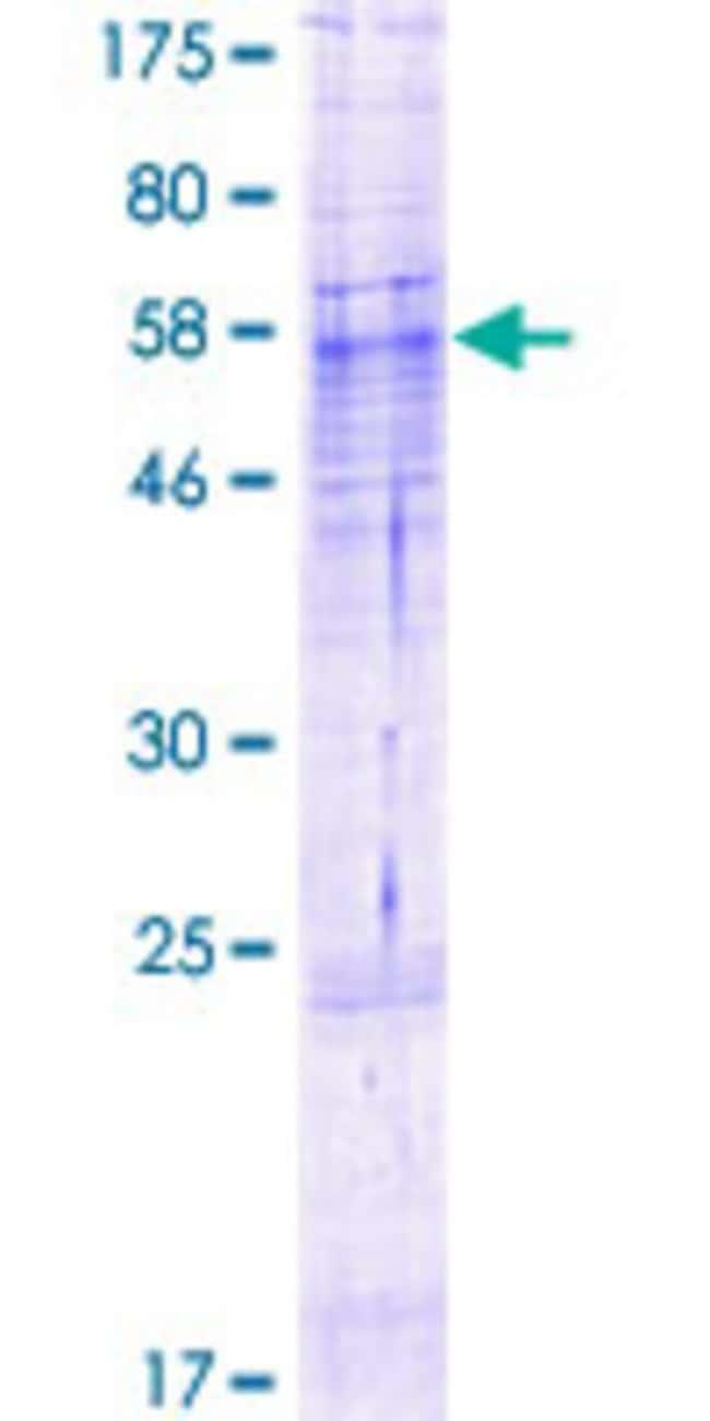 AbnovaHuman ABHD13 Full-length ORF (NP_116248.2, 1 a.a. - 337 a.a.) Recombinant