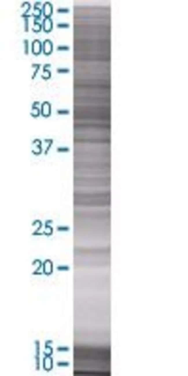 Abnova JUB 293T Cell Transient Overexpression Lysate (Denatured) 100µL:Life