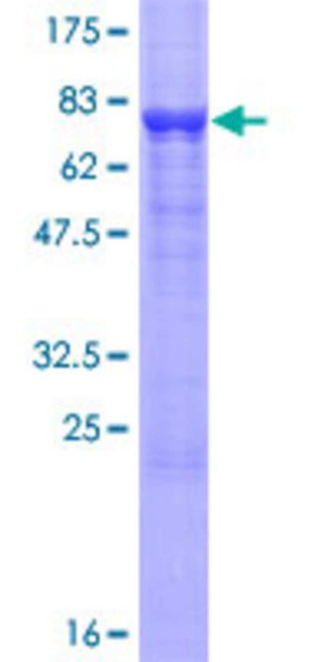 Abnova Human IGSF21 Full-length ORF (AAH07618.1, 1 a.a. - 467 a.a.) Recombinant