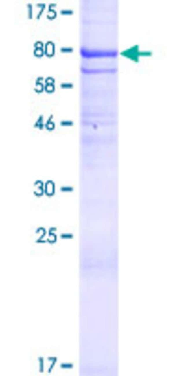 Abnova™Human DISP1 Full-length ORF (AAH07734.1, 1 a.a. - 542 a.a.) Recombinant Protein with GST-tag at N-terminal 10μg Abnova™Human DISP1 Full-length ORF (AAH07734.1, 1 a.a. - 542 a.a.) Recombinant Protein with GST-tag at N-terminal