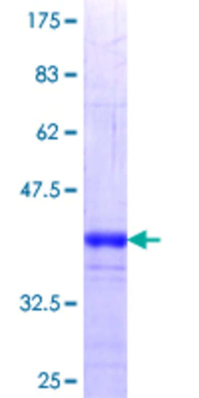 Abnova™Human PPP1R16A Partial ORF (NP_116291.1, 429 a.a. - 528 a.a.) Recombinant Protein with GST-tag at N-terminal 25μg Abnova™Human PPP1R16A Partial ORF (NP_116291.1, 429 a.a. - 528 a.a.) Recombinant Protein with GST-tag at N-terminal
