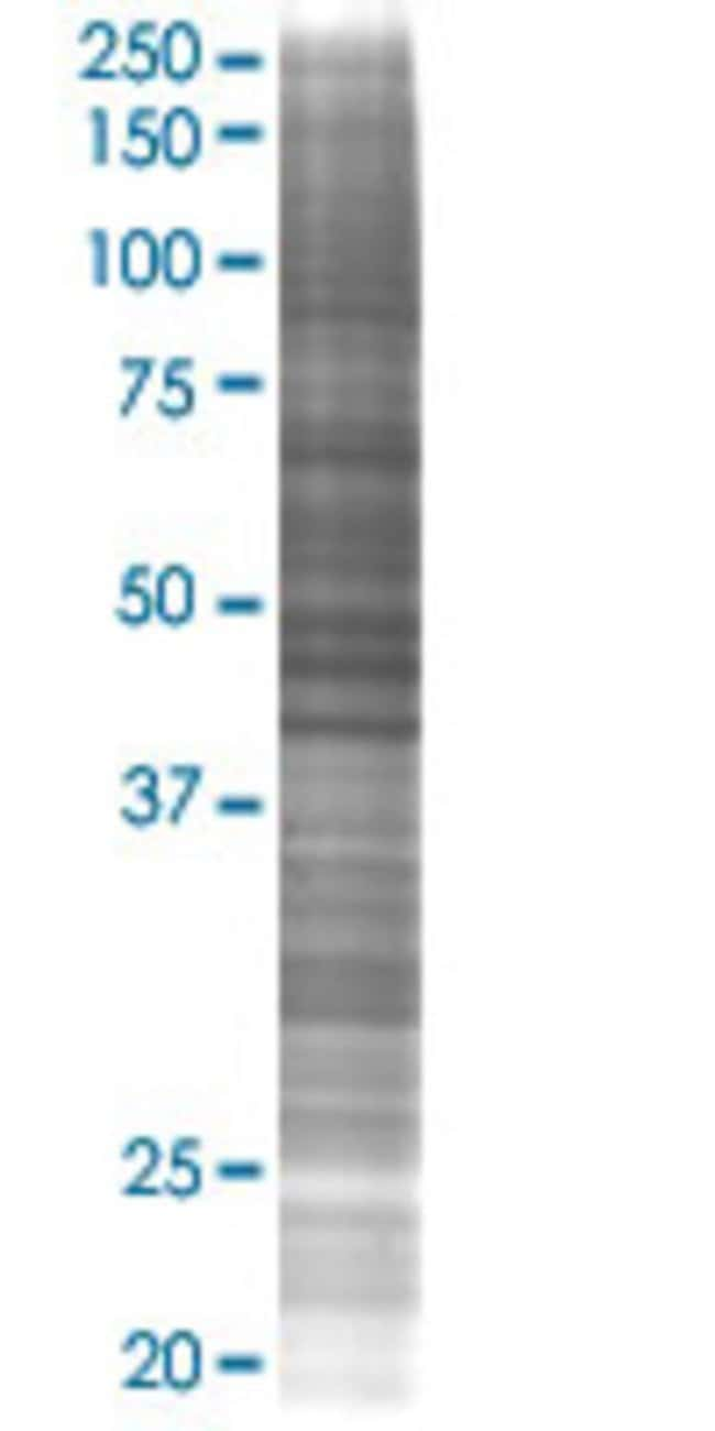 AbnovaAGXT2L2 293T Cell Transient Overexpression Lysate (Denatured) (T02)