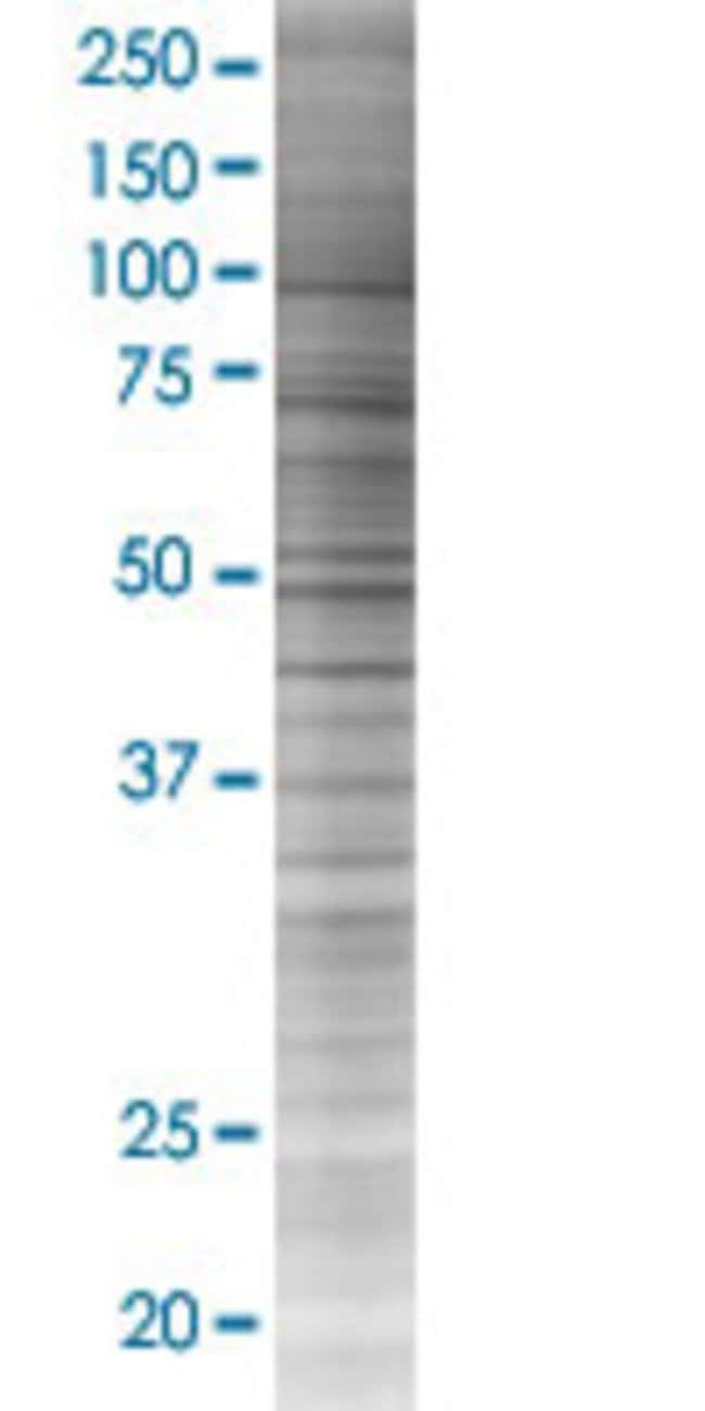 AbnovaABCC11 293T Cell Transient Overexpression Lysate (Denatured) (T02)