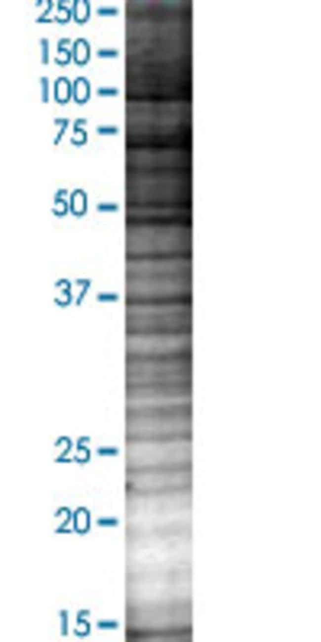 Abnova LGALS12 293T Cell Transient Overexpression Lysate (Denatured) 100µL:Life