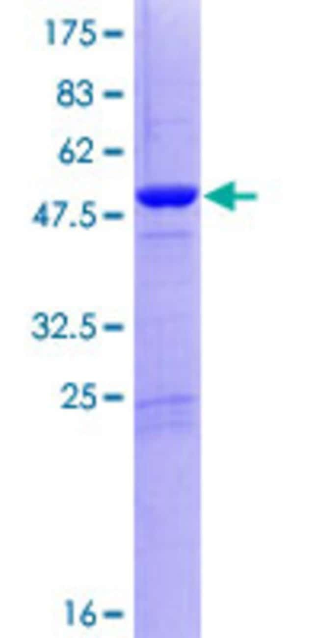 Abnova™Human DGCR6L Full-length ORF (AAH00682.1, 1 a.a. - 220 a.a.) Recombinant Protein with GST-tag at N-terminal 25μg Abnova™Human DGCR6L Full-length ORF (AAH00682.1, 1 a.a. - 220 a.a.) Recombinant Protein with GST-tag at N-terminal
