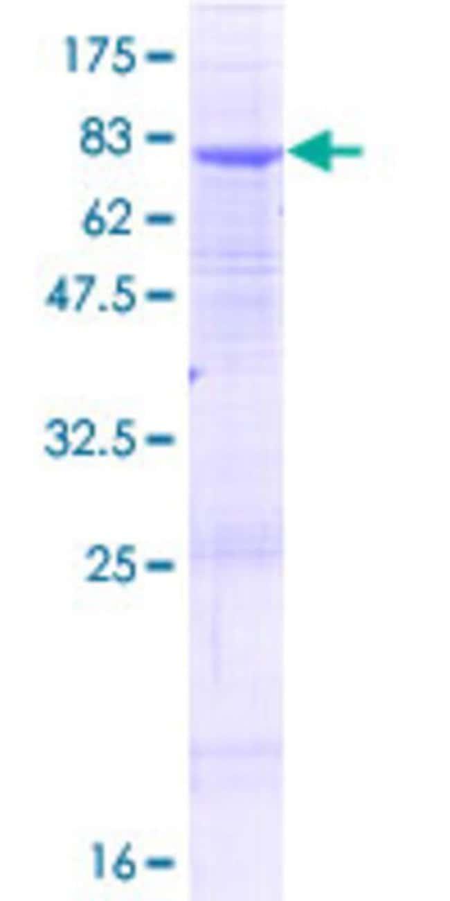 AbnovaHuman ALG2 Full-length ORF (NP_149078.1, 1 a.a. - 416 a.a.) Recombinant