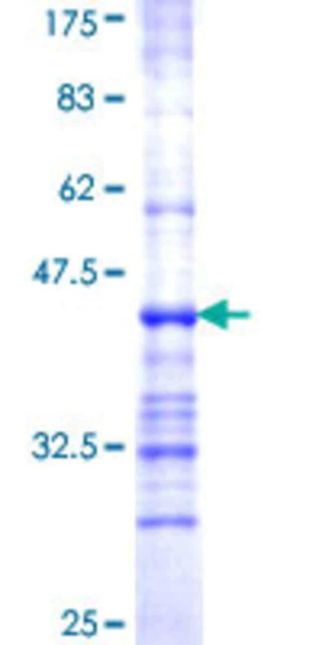 AbnovaHuman ALG2 Partial ORF (NP_149078, 317 a.a. - 416 a.a.) Recombinant