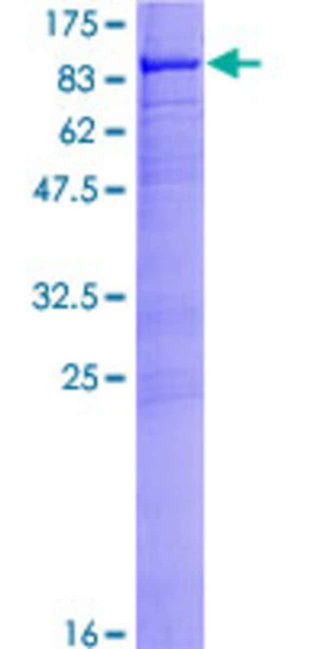 Abnova™Human MYLK2 Full-length ORF (NP_149109.1, 1 a.a. - 596 a.a.) Recombinant Protein with GST-tag at N-terminal 25μg Abnova™Human MYLK2 Full-length ORF (NP_149109.1, 1 a.a. - 596 a.a.) Recombinant Protein with GST-tag at N-terminal