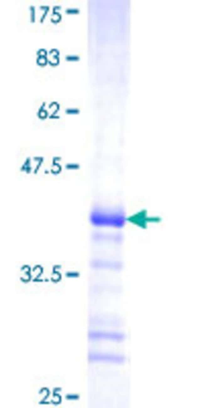 Abnova™Human MYLK2 Partial ORF (NP_149109, 161 a.a. - 260 a.a.) Recombinant Protein with GST-tag at N-terminal 10μg Abnova™Human MYLK2 Partial ORF (NP_149109, 161 a.a. - 260 a.a.) Recombinant Protein with GST-tag at N-terminal