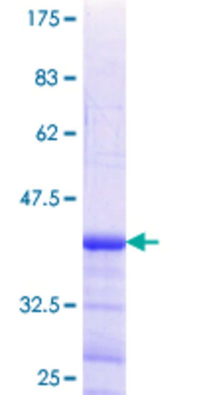 Abnova™Human LBX2 Partial ORF (NP_001009812.1, 95 a.a. - 194 a.a.) Recombinant Protein with GST-tag at N-terminal 10μg Abnova™Human LBX2 Partial ORF (NP_001009812.1, 95 a.a. - 194 a.a.) Recombinant Protein with GST-tag at N-terminal