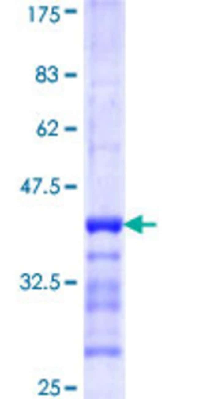 Abnova™Human GFM1 Partial ORF (NP_079272, 653 a.a. - 751 a.a.) Recombinant Protein with GST-tag at N-terminal 25μg Abnova™Human GFM1 Partial ORF (NP_079272, 653 a.a. - 751 a.a.) Recombinant Protein with GST-tag at N-terminal