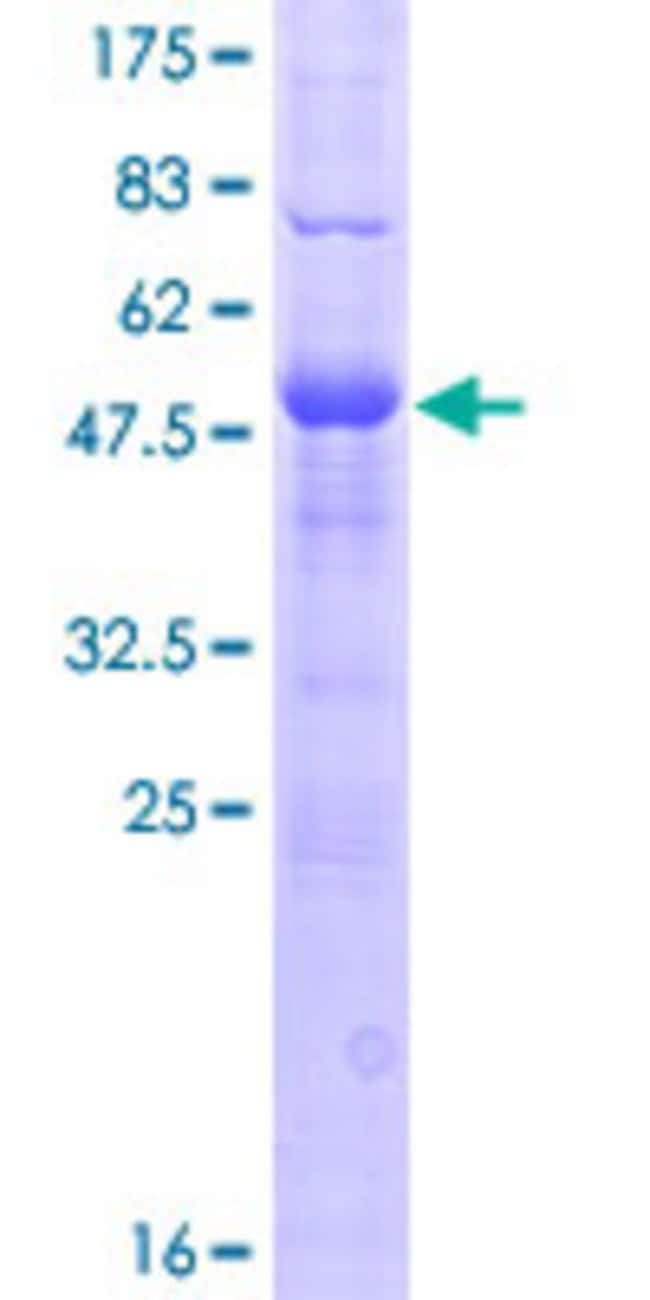 Abnova™Human DNAJC5B Full-length ORF (NP_149096.2, 1 a.a. - 199 a.a.) Recombinant Protein with GST-tag at N-terminal 25μg Abnova™Human DNAJC5B Full-length ORF (NP_149096.2, 1 a.a. - 199 a.a.) Recombinant Protein with GST-tag at N-terminal