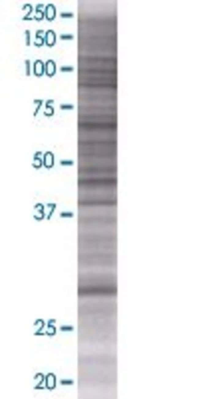 AbnovaABCC10 293T Cell Transient Overexpression Lysate (Denatured) (T01)