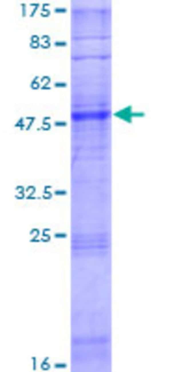 AbnovaHuman OR6W1P Full-length ORF (AAH69382.2, 1 a.a. - 280 a.a.) Recombinant