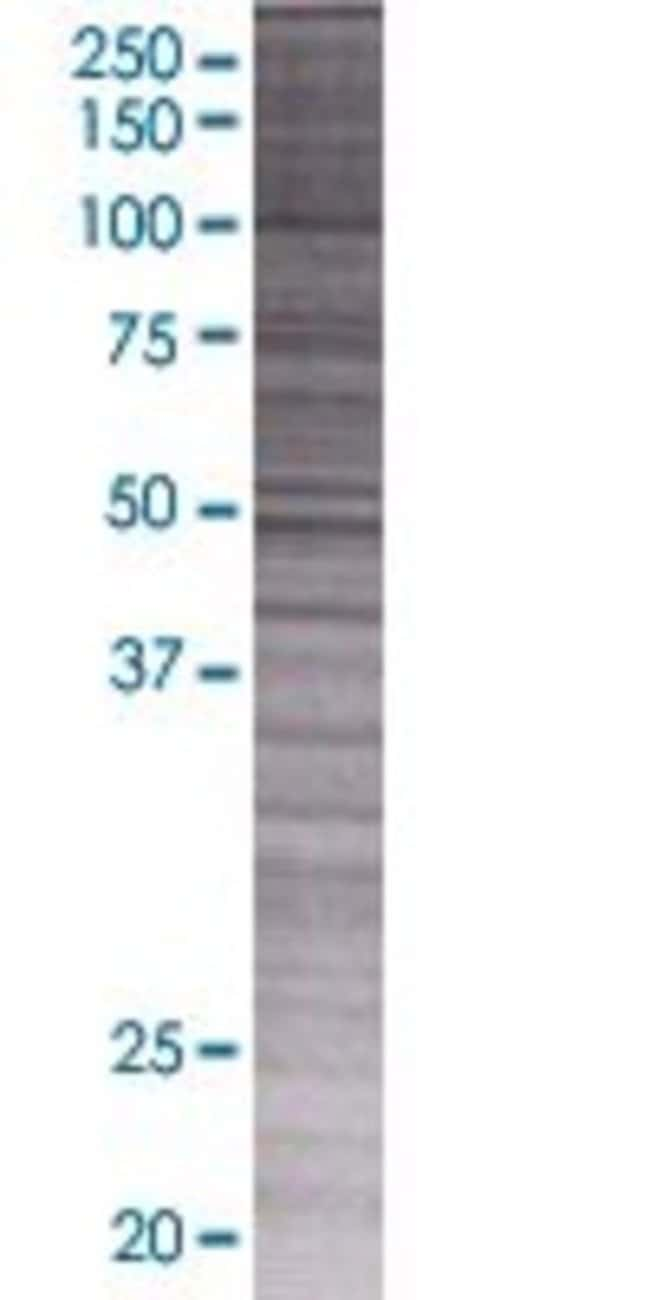 Abnova KBTBD6 293T Cell Transient Overexpression Lysate (Denatured) 100µL:Life
