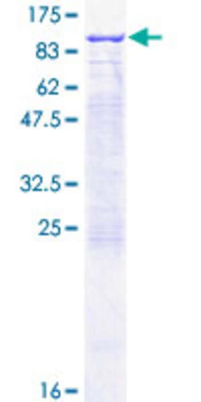 Abnova Human RHOT2 Full-length ORF (NP_620124.1, 1 a.a. - 618 a.a.) Recombinant